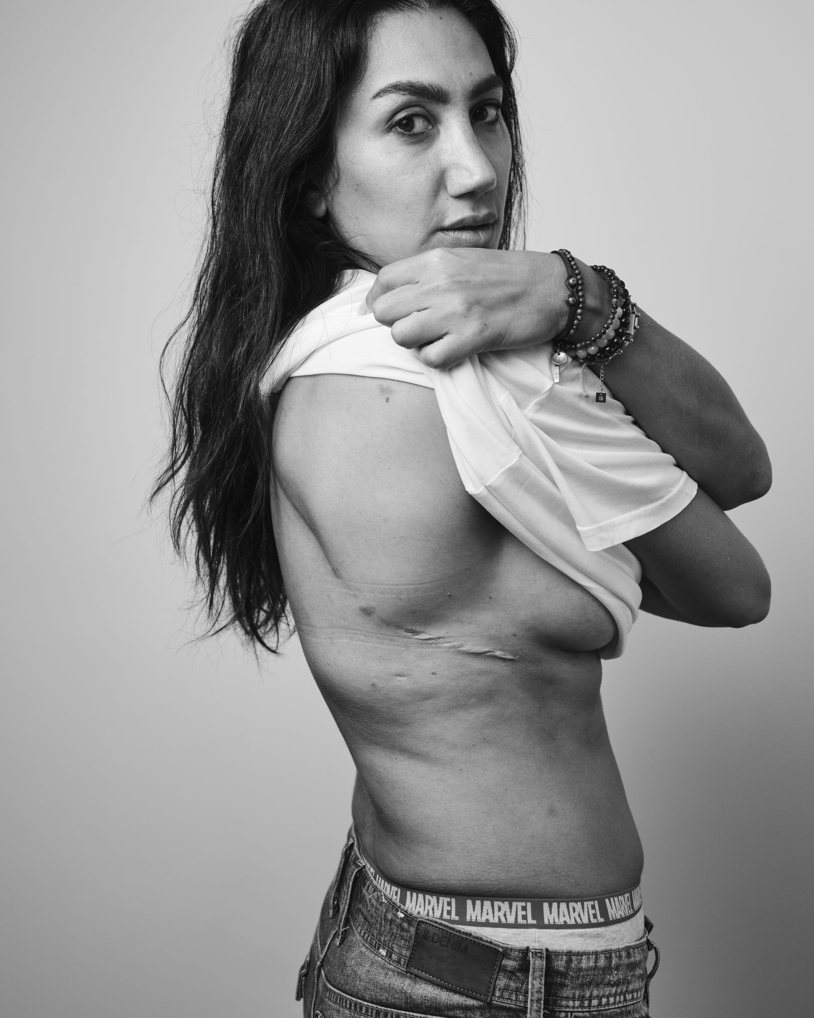 A black and white photograph of a woman standing sideways and holding her shirt up to reveal a scar on her ribs.