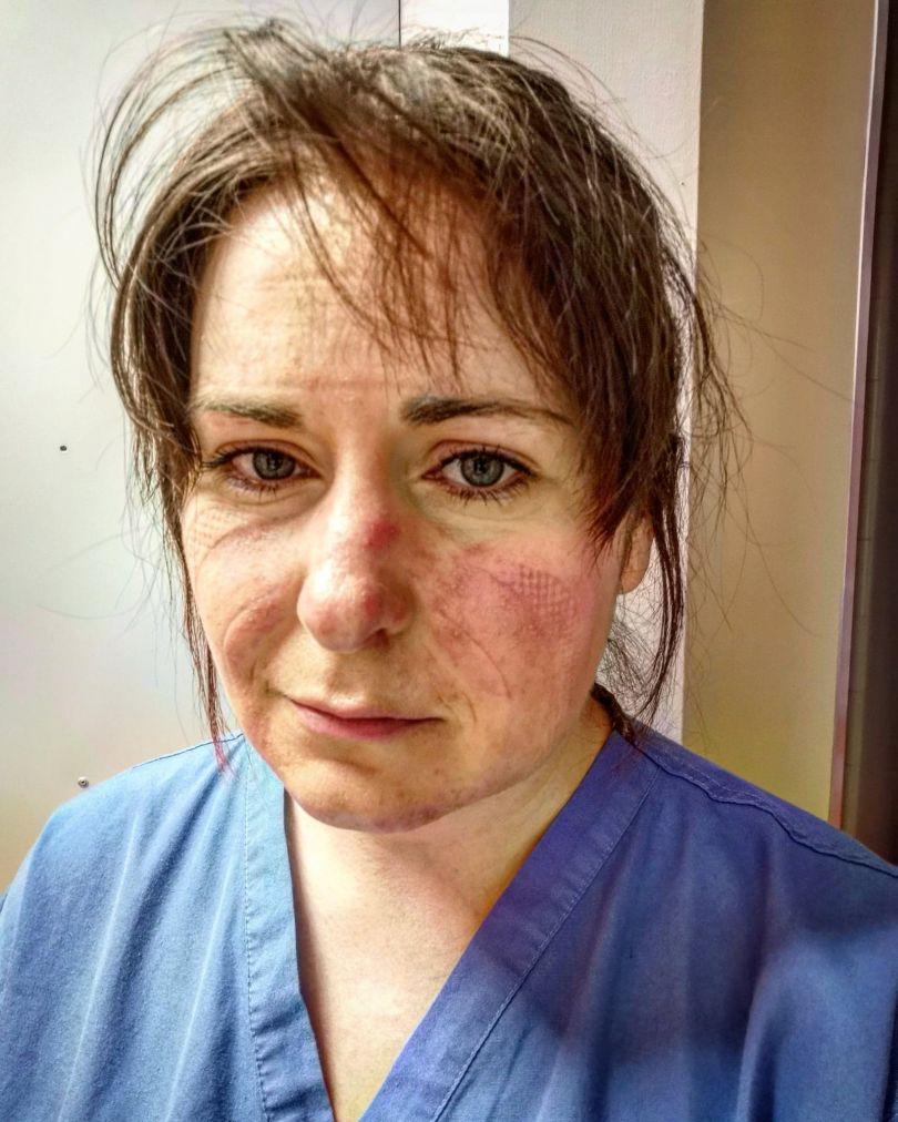 Nurse Aimée Goold after a 13-hour shift treating coronavirus patients © Aimée Goold