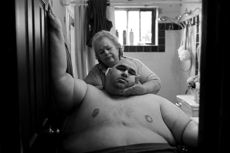 A Life Apart: The Toll of Obesity by Lisa Krantz, United States, Shortlisted, Contemporary Issues, Professional, 2015 Sony World Photography Awards