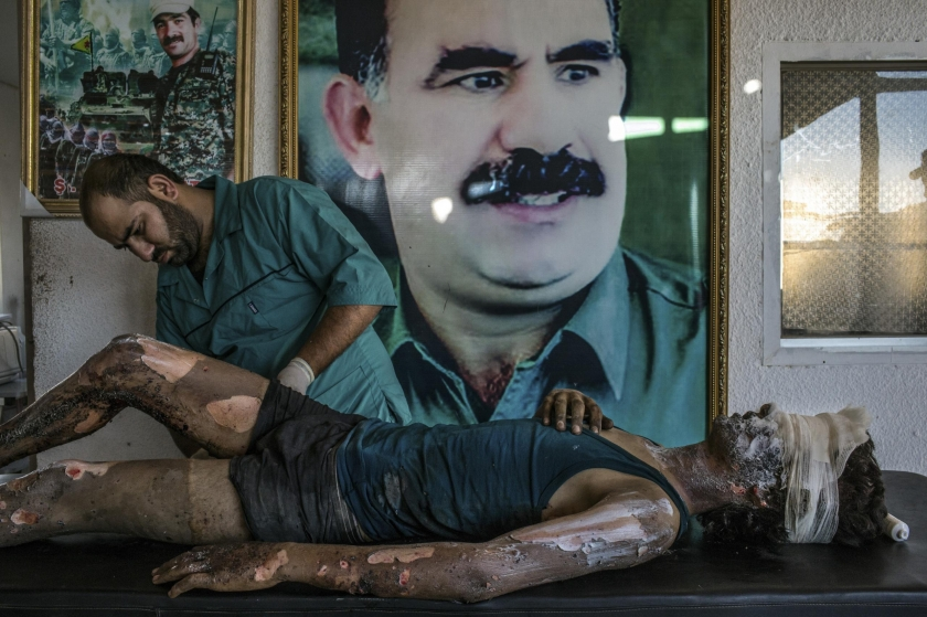 General News, first prize singles: A doctor rubs ointment on the burns of Jacob, a 16-year-old Islamic State fighter, in front of a poster of Abdullah Ocalan, the jailed leader of the Kurdistan Workers' Party, at a Y.P.G. hospital compound on the outskirts of Hasaka, Syria. Mauricio Lima.