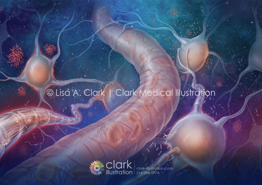 Biomarkers for Alzheimer's Disease © Lisa A. Clark